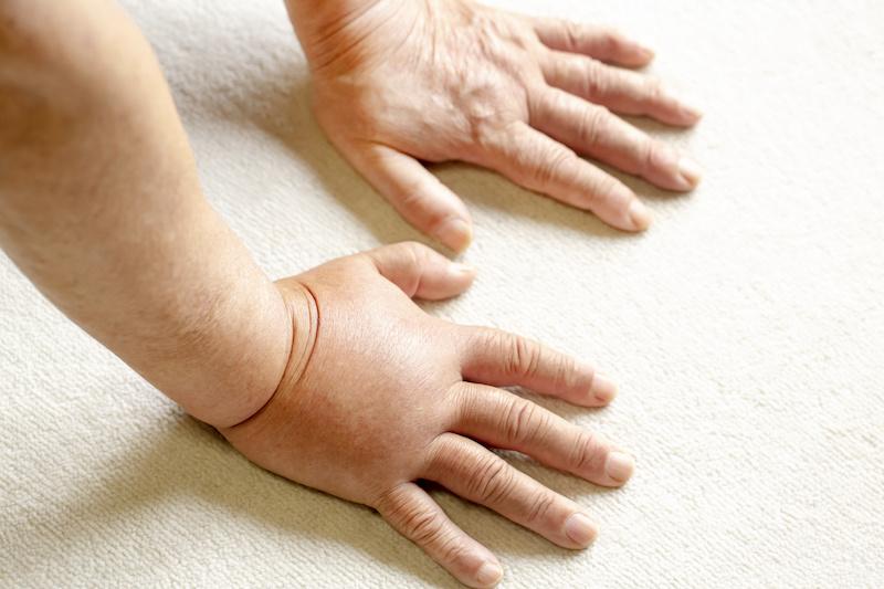 スズメバチに刺されて腫れ上がった人の手