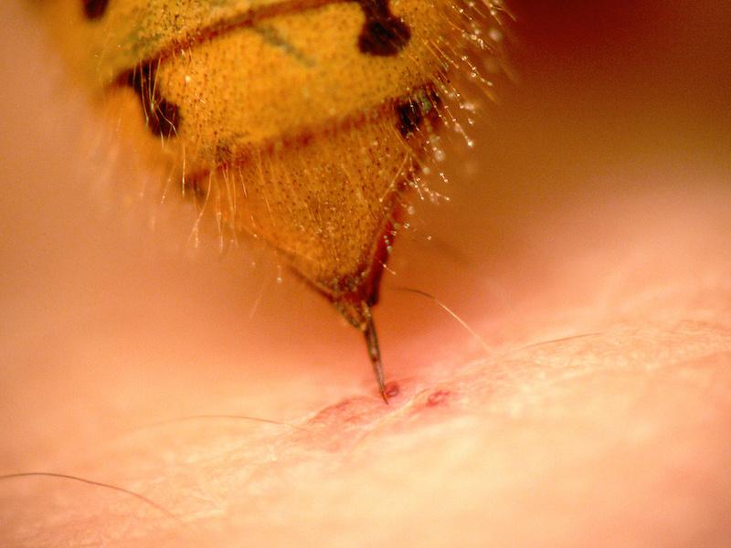スズメバチによる刺症