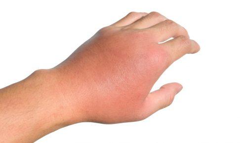 蜂に刺されて腫れた左手
